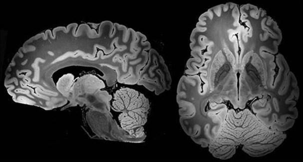 Сканирование мозга позволяет увидеть Facebook